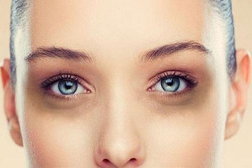 Kinh nghiệm trị thâm quầng mắt lâu năm hiệu quả