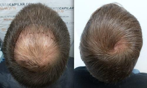 Cách mọc tóc nhanh cho nam giới hiệu quả