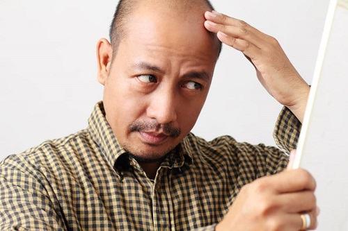 Cách mọc tóc nhanh cho nam giới hiệu quả 1